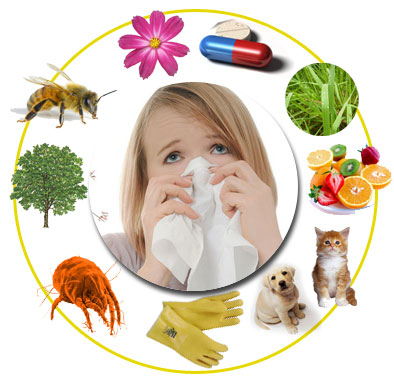 20151021183804-alergia.jpg